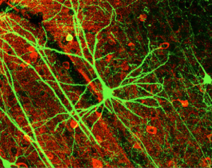 GFP expressing pyramydal cell in mouse cortex. Dynamic Remodeling of Dendritic Arbors in GABAergic Interneurons of Adult Visual Cortex Wei-Chung Allen Lee, Hayden Huang, Guoping Feng, Joshua R. Sanes, Emery N. Brown, Peter T. So, Elly Nedivi PLoS Biology Vol. 4, No. 2, e29